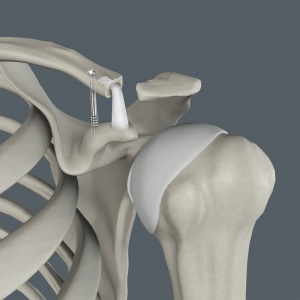 Acromioclavicular (AC) Joint Reconstruction2